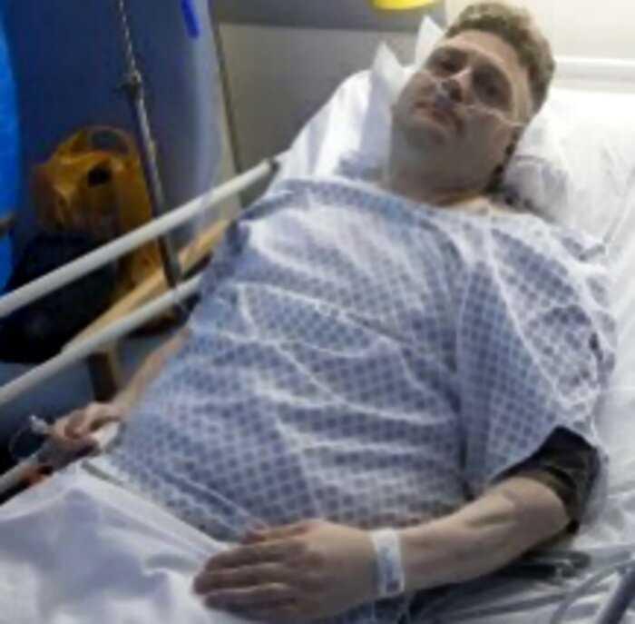Британец с искусственным пенисом впал в кому после первой ночи любви
