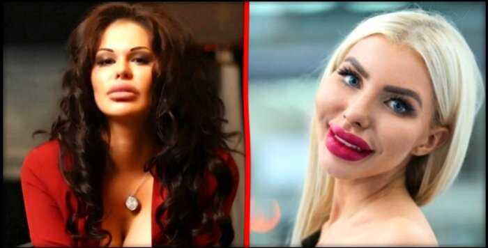 9 «полу-знаменитостей», которые перестарались с подкачкой губ