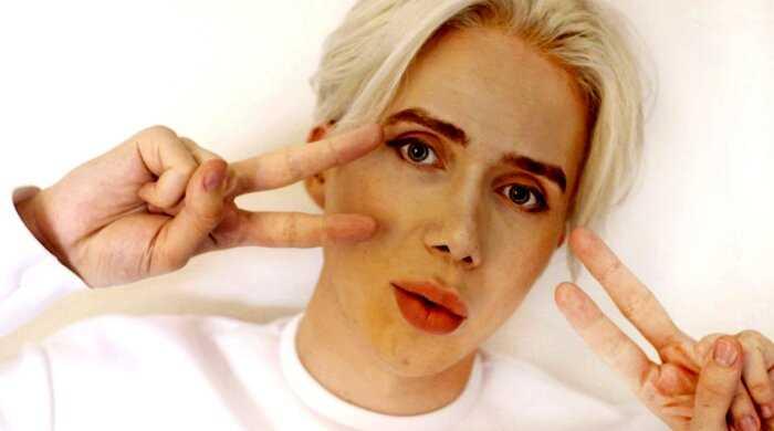 Британец потратил 6,5 млн рублей и чуть не ослеп, в попытке стать ближе к корейской поп-звезде