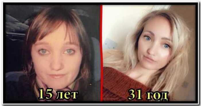 История Бенджамина Баттона в женском теле: 31-летняя женщина молодеет каждый год
