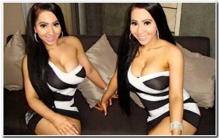 Самые похожие в мире близняшки жалеют о пластике и хотят вернуть природную внешность