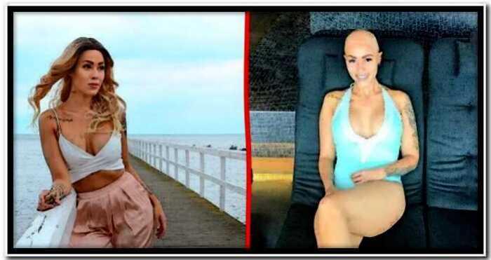 В Швеции облысевшая девушка сняла парик и превратилась в звезду