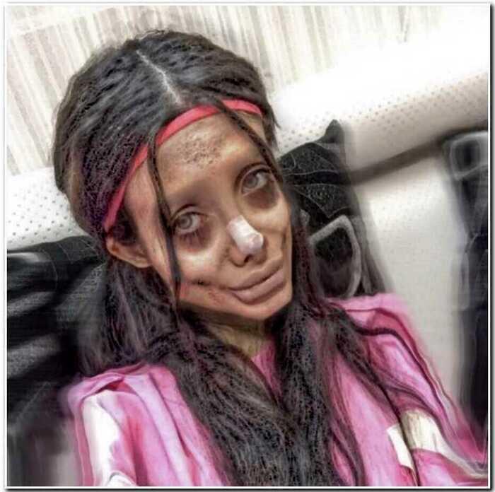 «Иранская Джоли» сделала 50 операций, чтобы стать похожей на своего кумира
