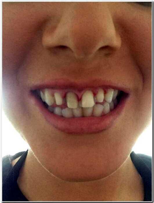 Титул «Мисс Англия» был уже её, но всё полетело к чертям после визита к стоматологу