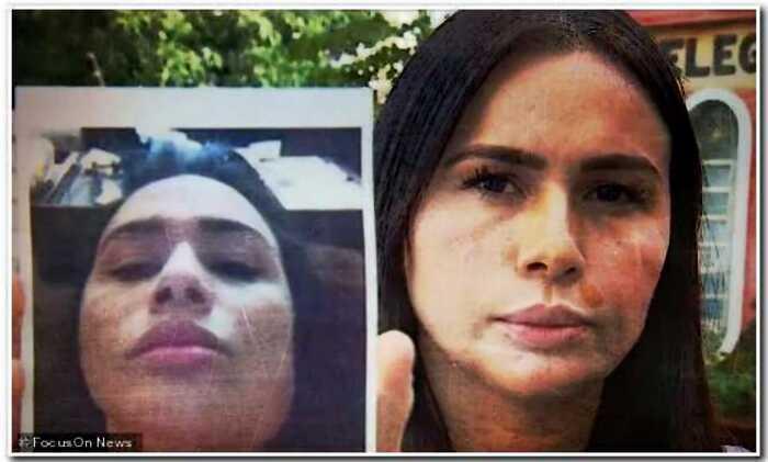 Бразильский хирург, изуродовавший своих пациентов, понесет наказание