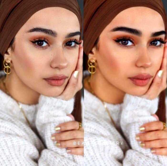 10 ярких фотографий о том, почему красота не всегда бывает «честной»