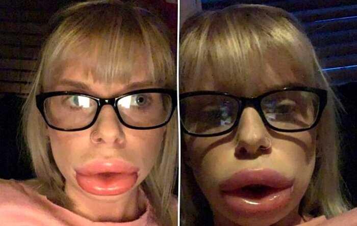 """""""Гламур на одну ночь"""": в Британии создали крем для увеличения губ"""