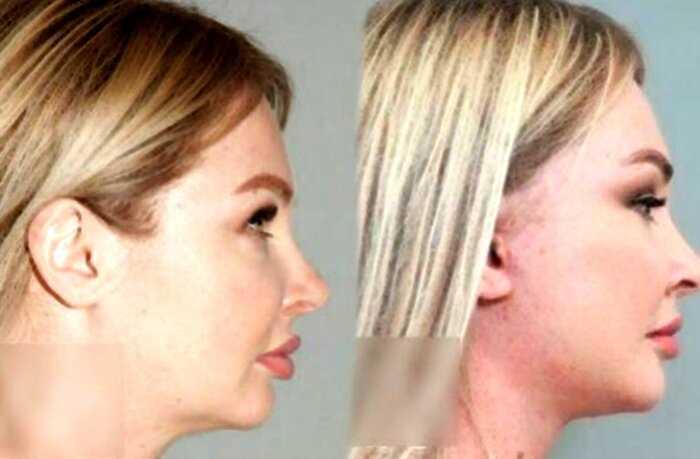 Пластический хирург показал фото Дарьи Пынзарь до и после операции