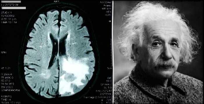 Исследование выявило: забывчивость — признак того, что вы очень умны