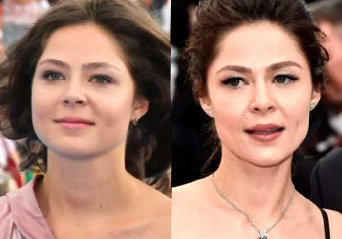 «Долой тройной подбородок»: как изменились лица российских звёзд после похудения