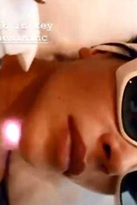 «Не ищет легких путей»: Ким Кардашьян сделала подтяжку лица через рот