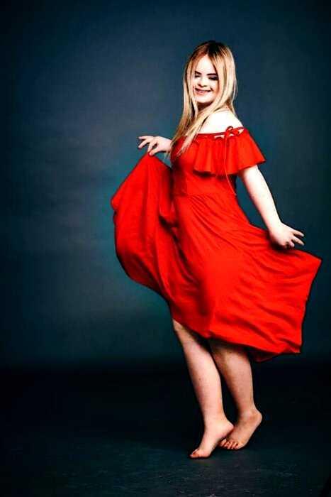 «Красота спасет мир»: модель с синдромом Дауна стала лицом косметического бренда