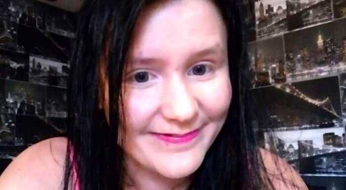 «Не могу ходить»: женщина просит денег в интернете, чтобы уменьшить грудь 13-го размера