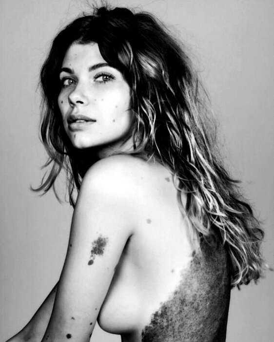 «Модель-далматинец» покорила соц-сети своей невероятной пятнистой внешностью